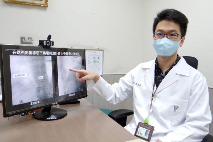 奇美醫學中心麻醉部暨疼痛科主治醫師廖書緯(圖)指出,年齡大於50歲且有多重慢性病,免疫功能不良的族群,可評估接受施打帶狀皰疹疫苗來預防發病。(奇美醫學中心提供)